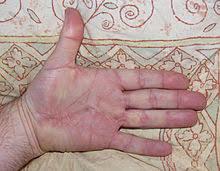 knoten handinnenfläche morbus dupuytren