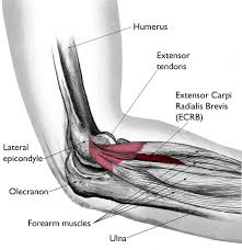 Anatomy Of The Right Arm Tennis Elbow Lateral Epicondylitis Orthoinfo Aaos