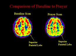 Part Of The Brain Stem That Is Involved In Arousal How Our Brains Are Wired For Belief Pew Research Center