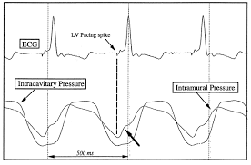 functional myocardial perfusion abnormality induced by left
