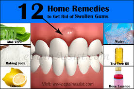 what causes swollen gums u0026 home remedies to get rid of it