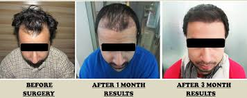 hair transplant month by month pictures precautions before and after hair transplant