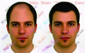 hair bonding hair fixing in bangalore hair replacement in bangalore
