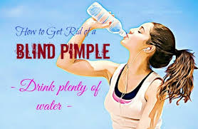Causes Of Blind Pimples How To Get Rid Of A Blind Pimple On Face And Skin 20 Tips