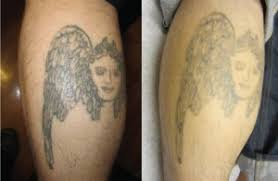 removal of a new tattoo best tatto 2017