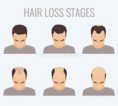 male pattern baldness hairstyles male pattern baldness stages stock illustration illustration of