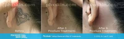 picosure laser tattoo removal phoenix tattoo removal