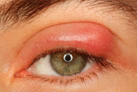 What Causes Blind Pimples In Adults Pimple On Eyelid Under Inside On Rim Small White Lump Upper
