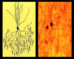 chandelier cells chandelier cells neuronbank
