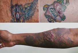 tattoo skin reactions allergies and infections
