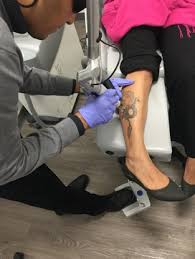 laser tattoo removal what to expect