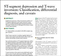 amazon black friday inversion dr smith u0027s ecg blog excellent review article on st depression