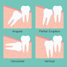 Teeth Whitening Colorado Springs Wisdom Teeth Removal Colorado Springs Stetson Hills Dental