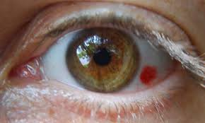 What Causes A Blind Spot In Your Eye Subconjunctival Hemorrhage Broken Blood Vessels In The Eye