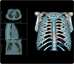 Anatomage Table Invivo5 Invivo5 Is A High Performance Volume Rendering Package