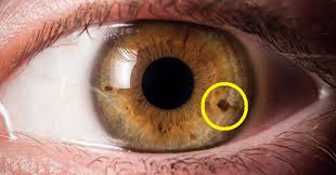 do you have a spot on your iris this is what it means david