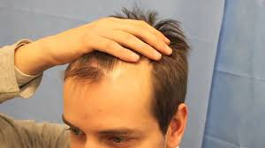 fue haircuts dr reddy fue on a 29 year old gentleman norwood 3 866 grafts