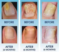 oral nail fungus treatment mailevel net