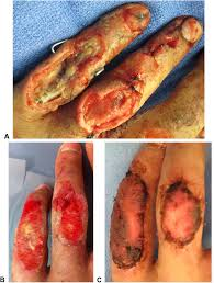 use of a dermal regeneration template wound dressing in the