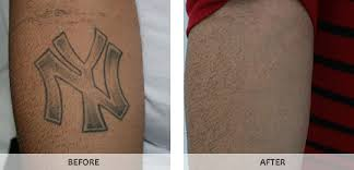 laser tattoo removal in bronx westchester new york ny by studio