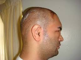 fue haircuts hair loss forum fue is here to stay