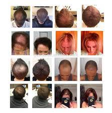 Hair Loss Cure For Women Best Keratin Thin Hair Treatment Plus Hair Growth Spray For Men