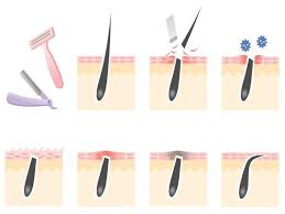 types of ingrown hair how to prevent ingrown hairs on legs face body being hairless