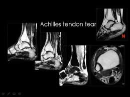 Ankle Ligament Tear Mri Radiology Imaging Of The Ankle Joint Lower Limb Youtube