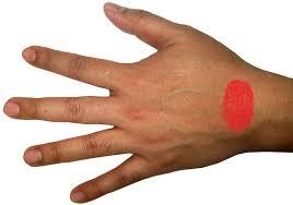 schmerzen in der handfläche sehnenscheidenentzündung bitte helft mir schmerzen verletzung