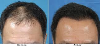 hair transplant costs in the philippines the propecia cost at walmart is affordable and you can buy generic