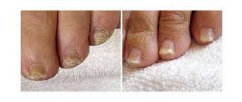 laser fungal nail treatment u003e kent u0026 essex brentwood u0026 sevenoaks