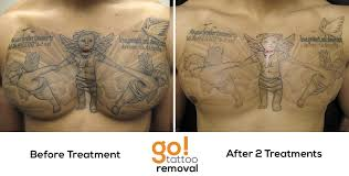 after 2 laser tattoo removal treatments we have great progress on