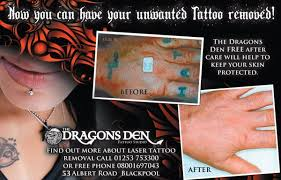 the dragons den laser tattoo removal tattoo 53 albert rd