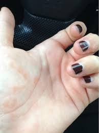 itchy bumps on hands that spread the long haul dyshidrosis in pregnancy