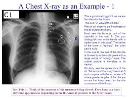Radiology Of Thorax The Human Body Through Images Ppt Download