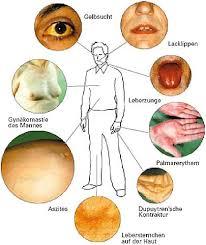 leberschwäche symptome symptome lebererkrankungen oft unklar sorgfältige diagnose