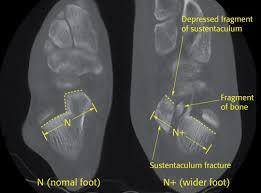 Subtalar Joint Fracture Calcaneus Reduction U0026 Fixation Orif Fixation