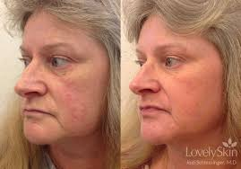 omaha dermatology rosacea treatments skin specialists pc