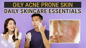 Best Skin Care For Adults With Acne Best Daily Skincare Essentials For Oily Acne Prone Skin