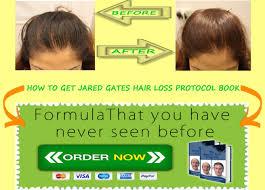 download hair loss ebook hairlossprotocol hair loss protocol program review