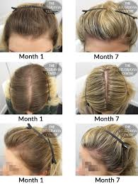 Women Hair Loss Treatment Success Story Alert New Female Hair Loss Treatment Entry