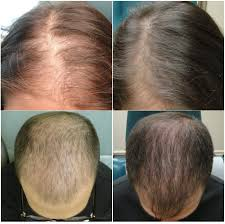 Platelet Rich Plasma Hair Loss Prp For Hair Restoration In New Smyrna Beach The Med Spa In New