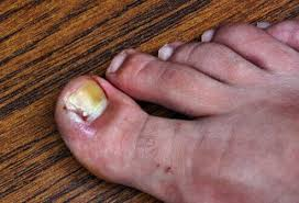 foot problems pictures slideshow ingrown toenails