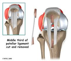 Anatomy Of Knee Injuries Anterior Cruciate Ligament Injuries Eorthopod Com