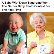 Memes Down Syndrome - dopl3r com memes baby with down syndrome won the gerber baby