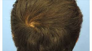i have a nape whorl what can be done about it youtube