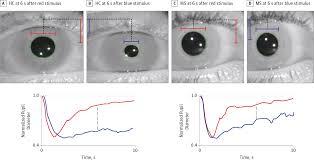 melanopsin mediated pupillary constriction and retina