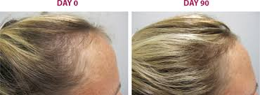 viviscal before and after hair length afro 1 hair growth products for women viviscal