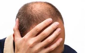 sting hair transplant what makes a good candidate for a hair transplant