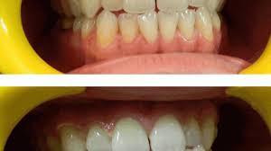 whitening seeing is believing amazing teeth whitening bleach